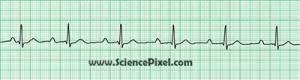 AV-Block 1. Grades (AV-Ueberleitungsstoerungen) / ECG, electrocardiogram